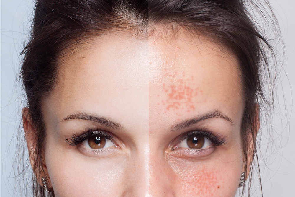 Lighten those blemishes - goodbye to ugly marks