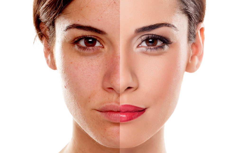 Incorrect make-up products give you acne, correct ones give you flawless skin